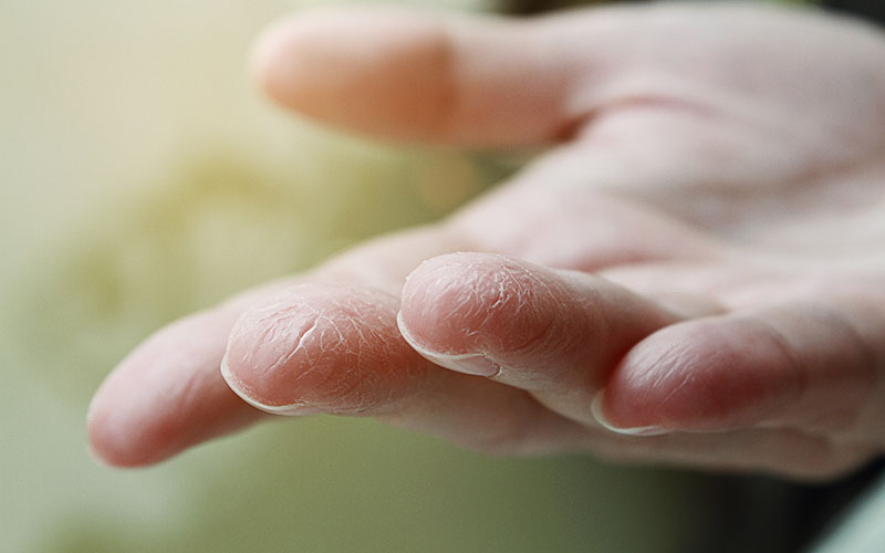 dry hands? not with the unique hand cream from orangeblue